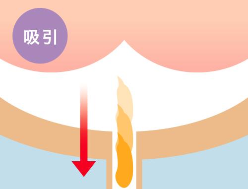 吸引-自動排泄の流れ